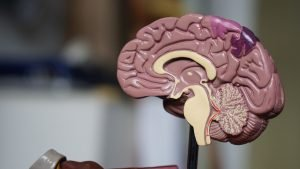 Image of brain model